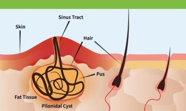 Diagram of a pilonidal cyst