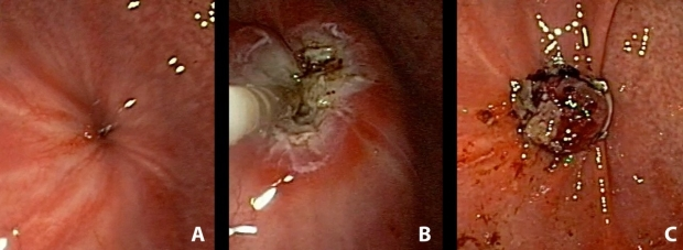 (A) Endoscopic View of GCF, (B) Endoscopic cauterization of the fistula, (C) Over the scope endoscopic clip sealing the GCF