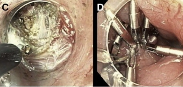 (C) Selective division of circular muscle fibers with preservation of underlying longitudinal muscle fibers, (D) Closure of mucosal incision with endoscopic clips